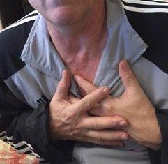 Adaptabilidad de guías clínicas. Un infarto en el domicilio, en un pueblo.